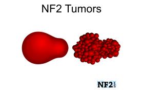 NF2 Tumors