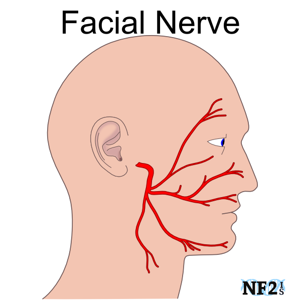 Facial Nerve Damage