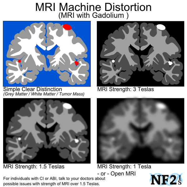 scan issue, MRI, clarity, 2 tesla, open MRI, old machine, new machine, distortion