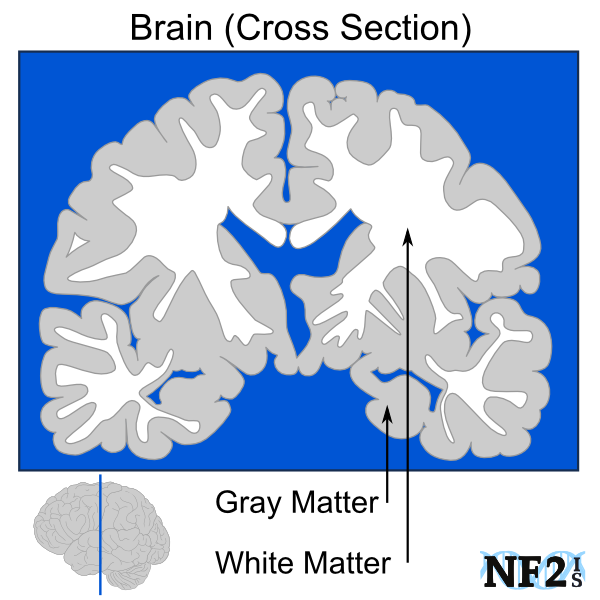 human brain, cross section, brain matter, gray matter, white matter