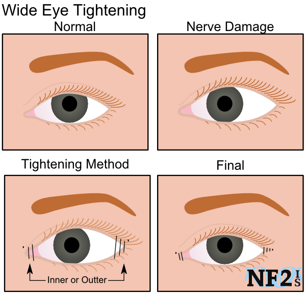 Eye Tightening, nerve damage, tightening method, surgery