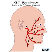 Right facial nerve