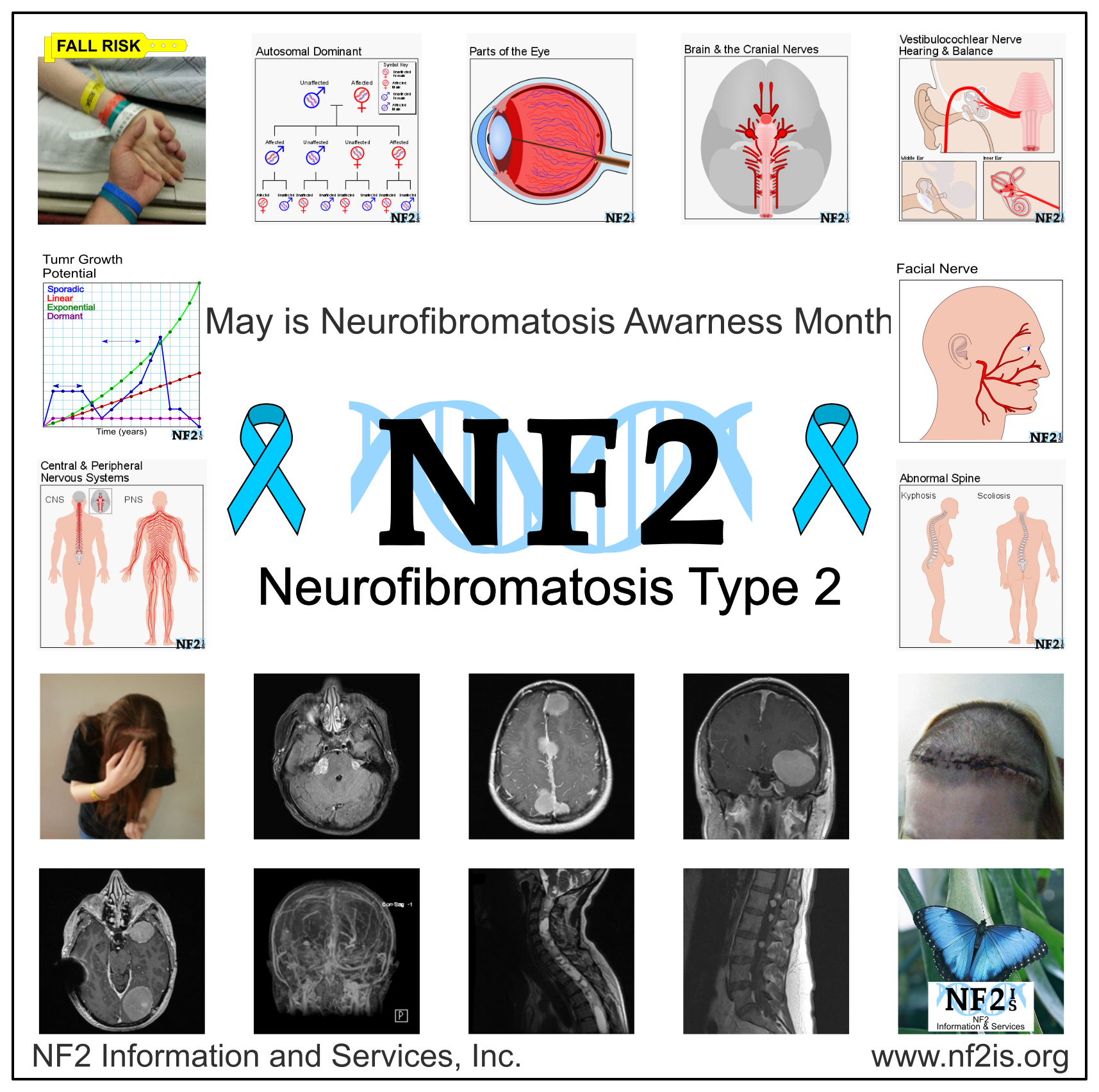 Neurofibromatosis Type 2, NF2, MRI, Spine, Brain, genetics, tumor growth, balance, hands, butterfly