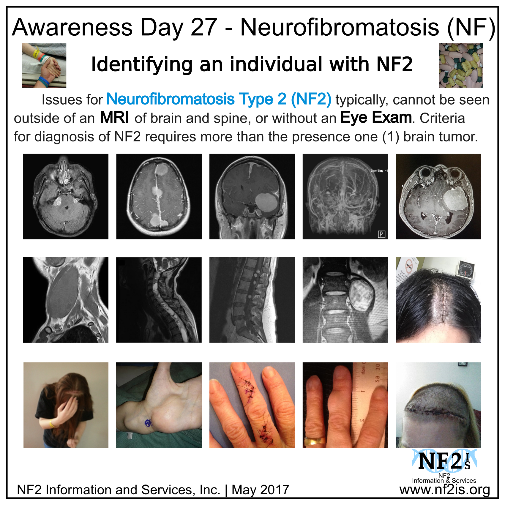 NF2, head stitches, brain tumors, body tumors, MRI, Photos