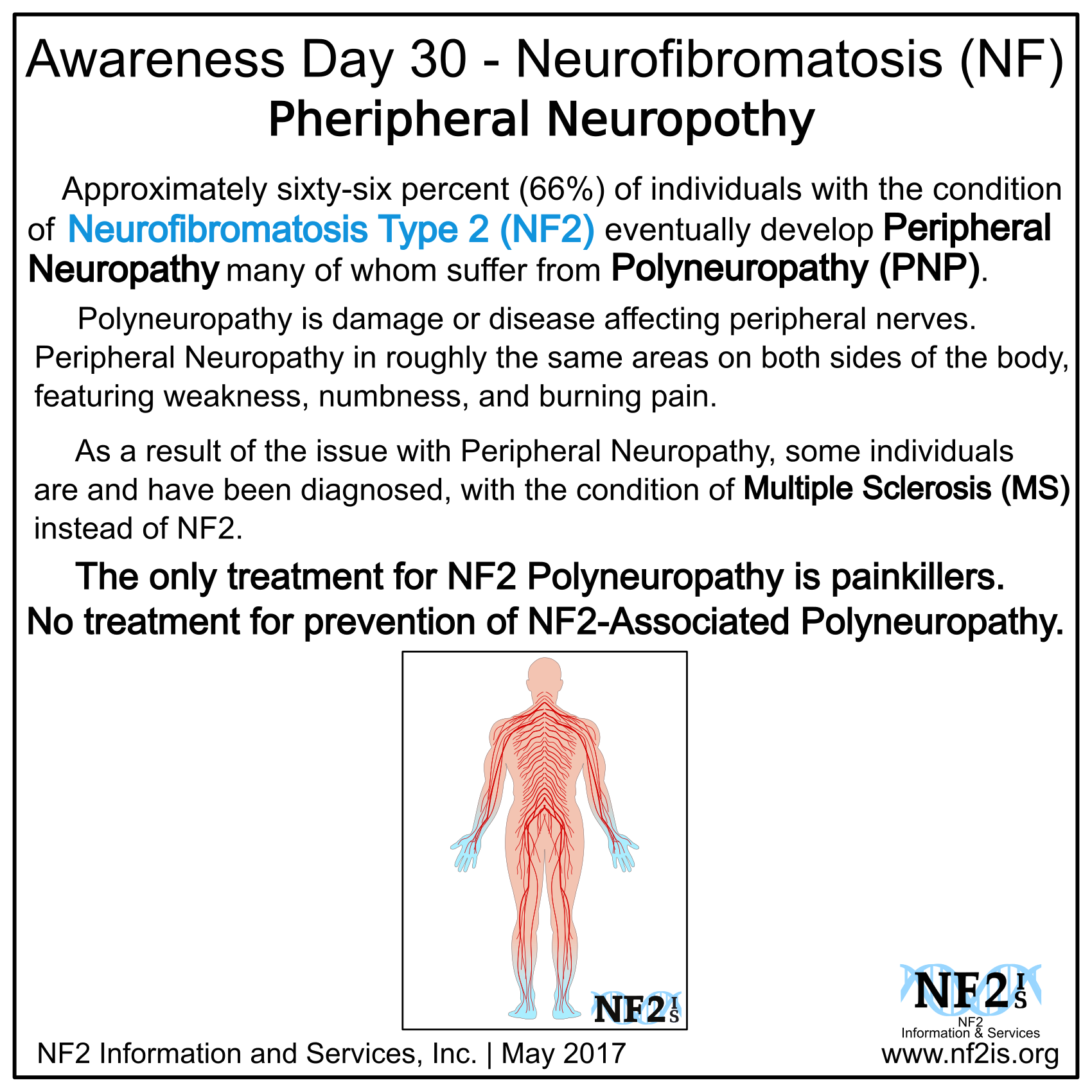 NF2, associated, Polyneuropathy, Peripheral Neuropathy, PNP