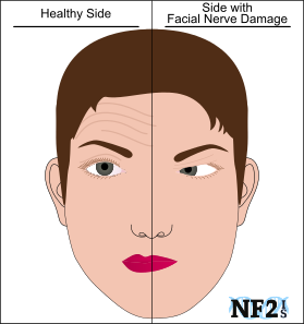 Facial nerve droopy mouth