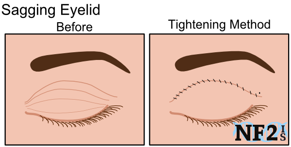 Sagging Eyelid, surgery, tightening method