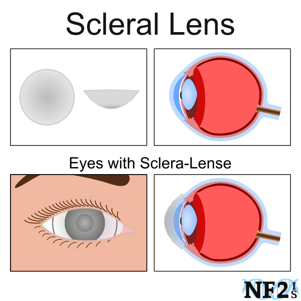 Sclera Lenses, dry eye treatment