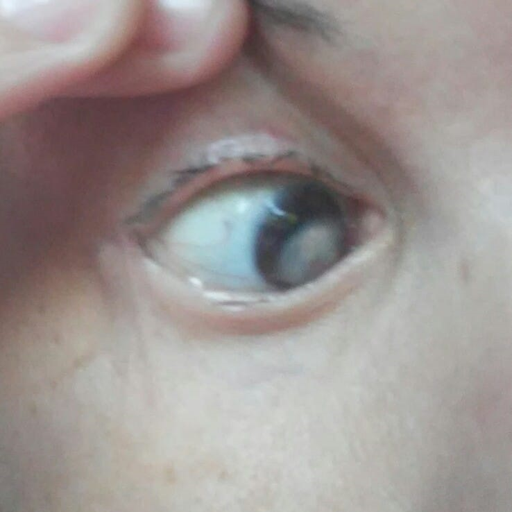 crack cornea