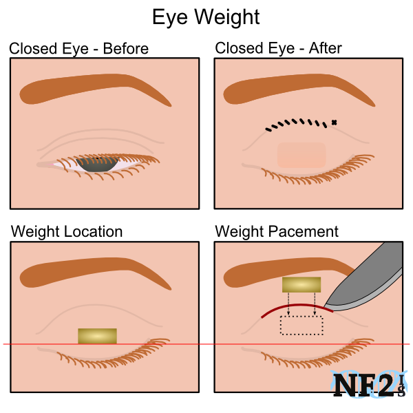 Eye Weight Placement, surgical